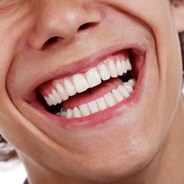 close up young man's smile
