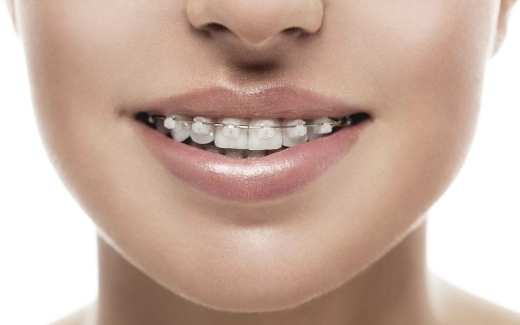 Are clear braces different than traditional braces?