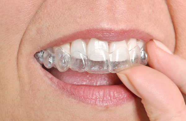 How Does Treatment with Invisalign Work Citrus Heights CA