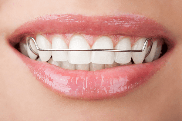 close up of woman's mouth wearing a retainer, Sacramento, CA