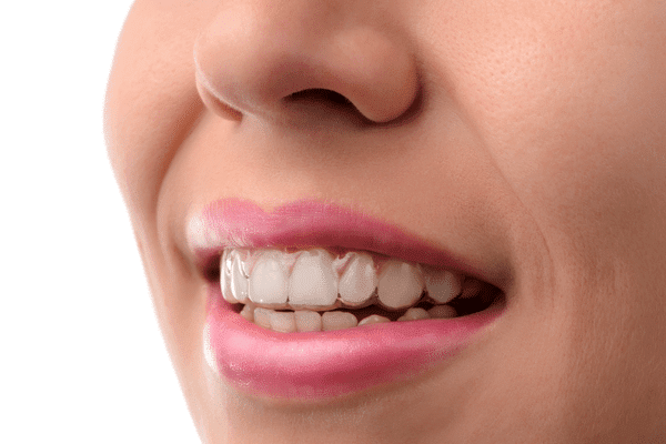 close up photo of woman wearing clear aligners