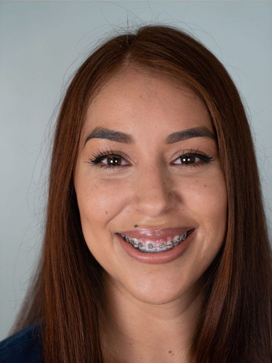 Lily L., Dental Assistant, American River Orthodontics