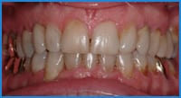 Stanley teeth after treatment