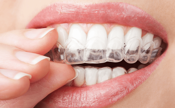 close up of woman inserting clear aligners