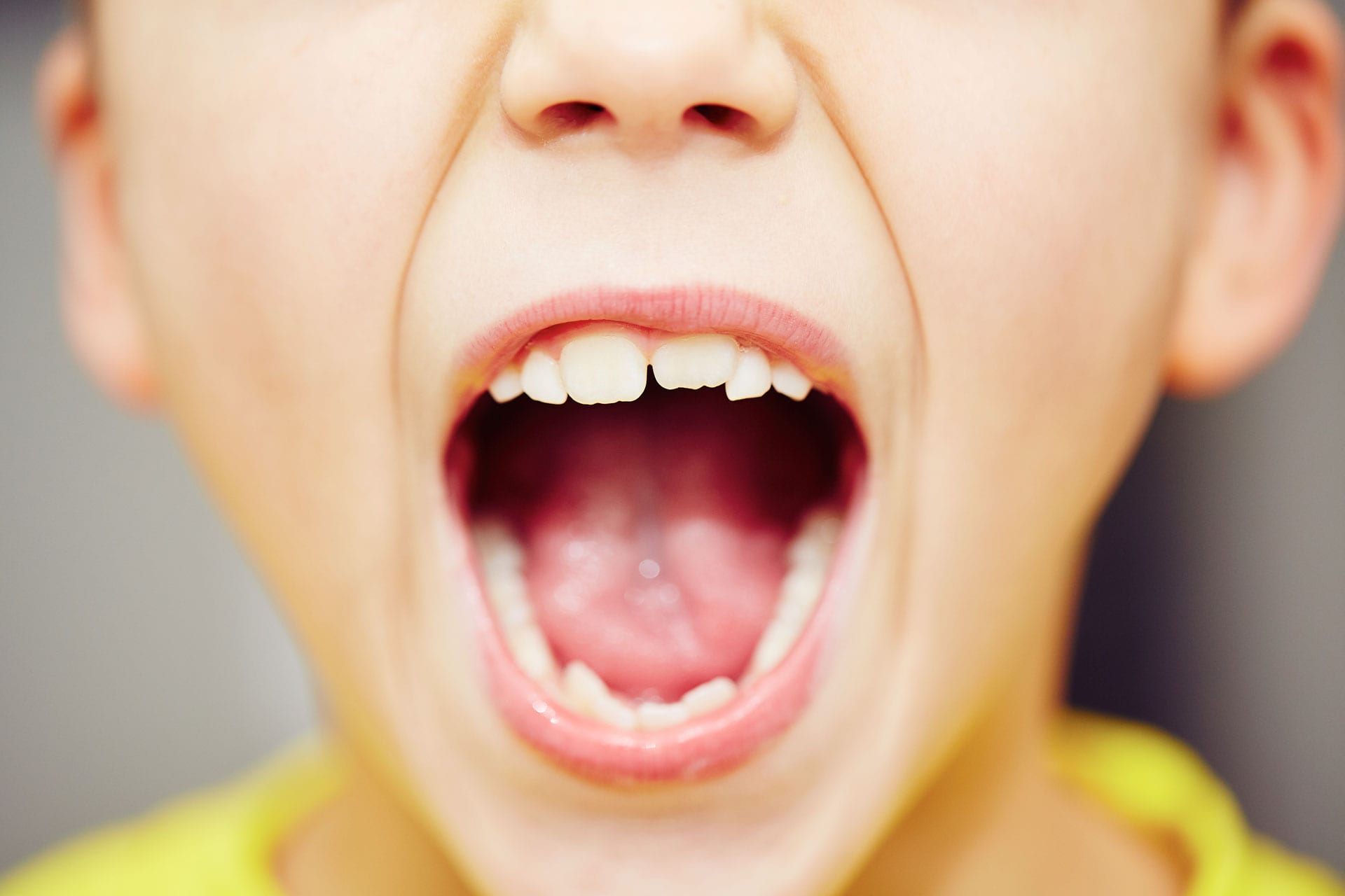 young boy with open mouth showing teeth