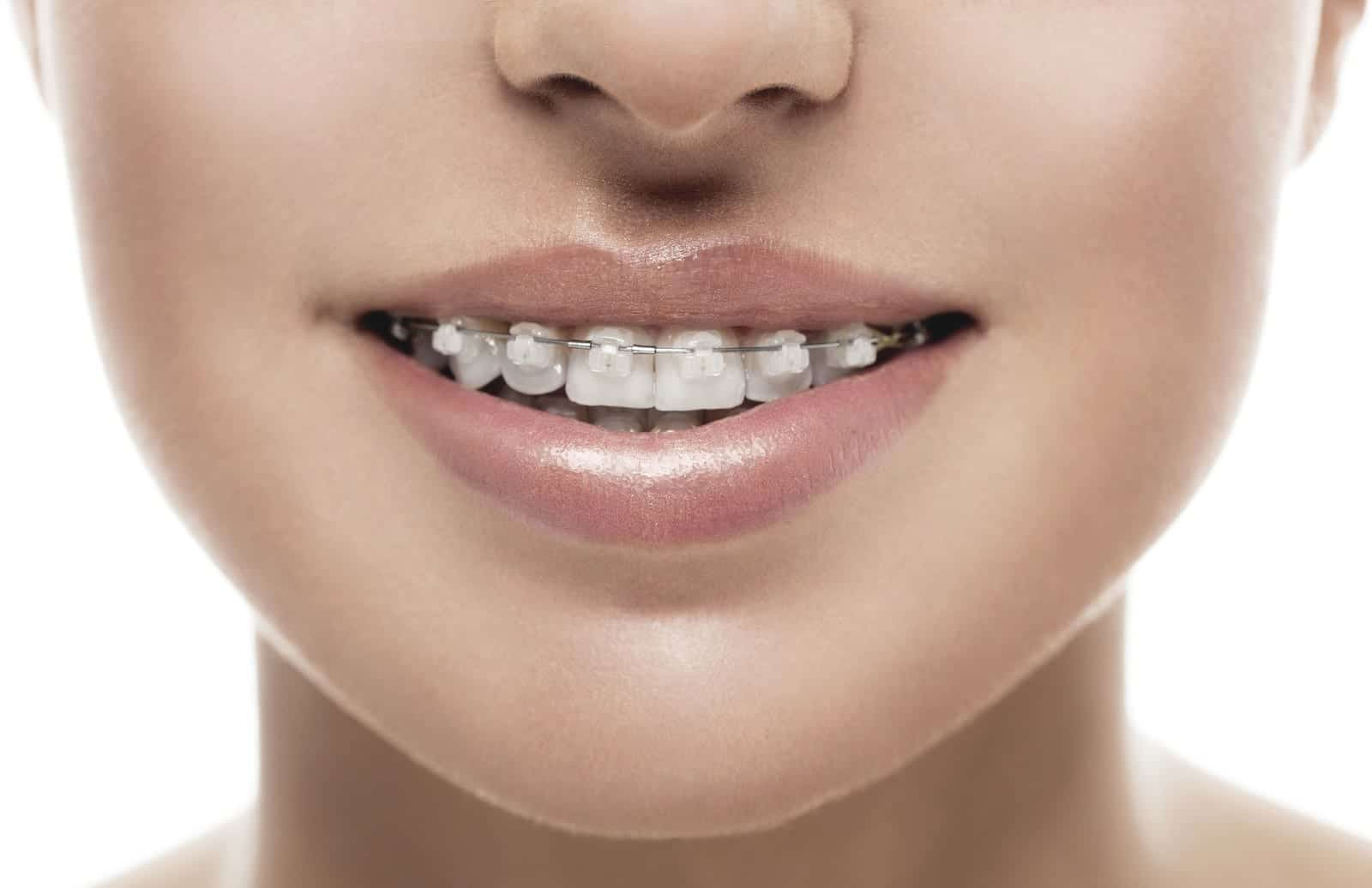 close up of teen girl wearing braces