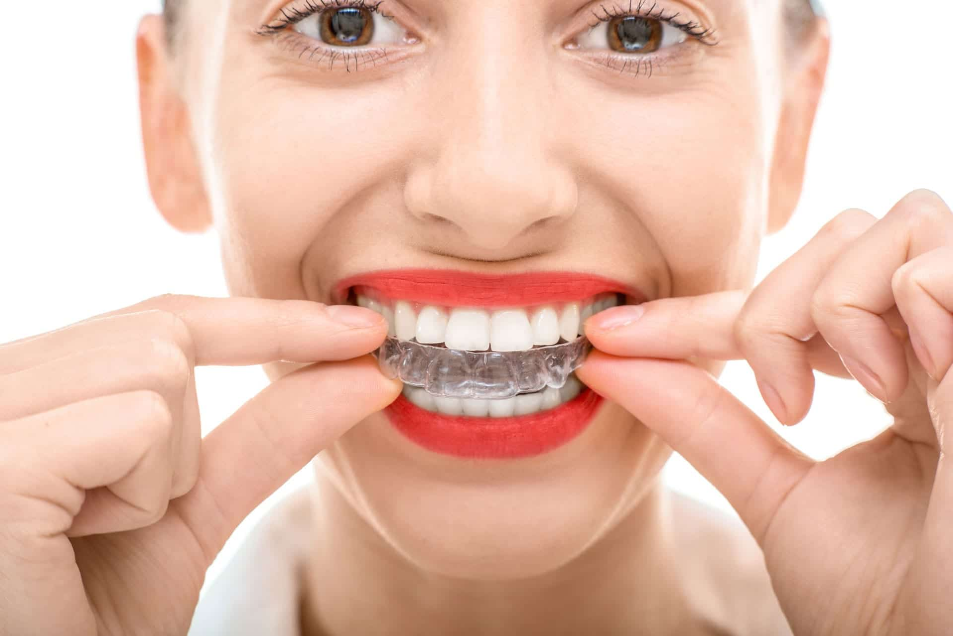 close up of woman inserting a clear aligner